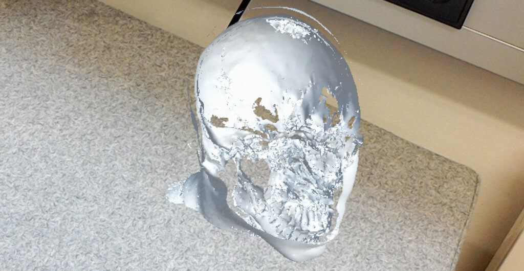 MRI of a skull sliced through the near clipping plane, as seen in HoloLens