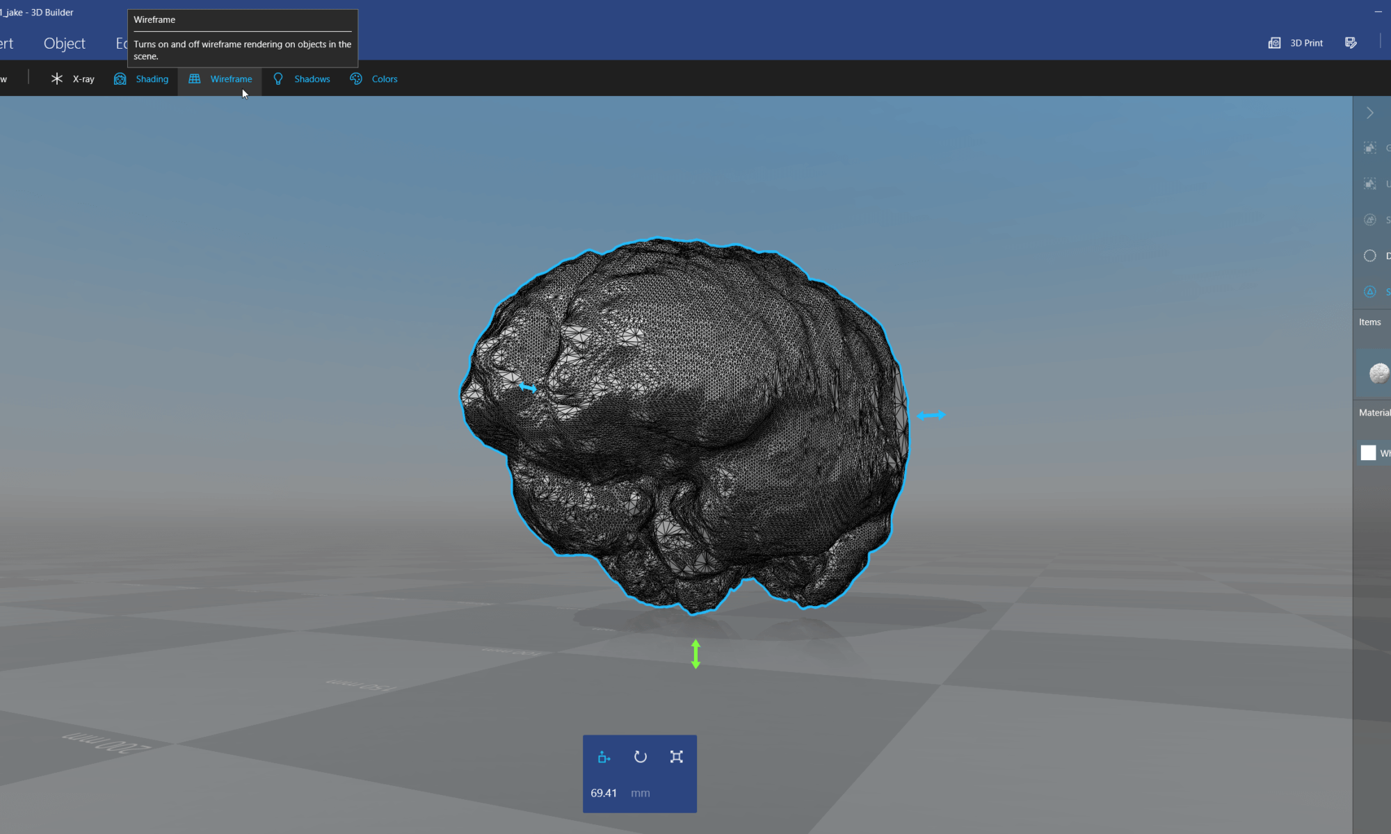 3D Builder: show 3D model of brain segmented from MRI / MRT image