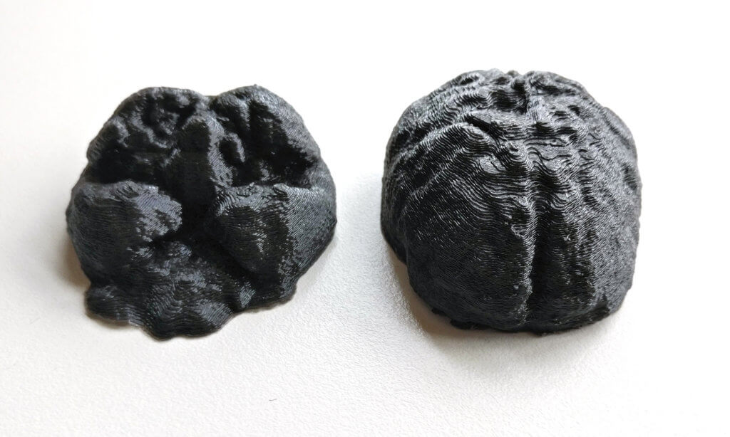 3D Printed brain halves, segmented from MRI image