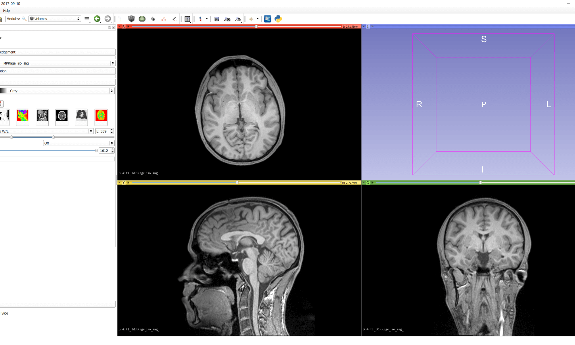 MRI data with auto W/L in 3D Slicer