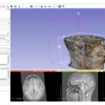 Region of Interest in a 3D Volume Rendering of an MRI in 3D Slicer