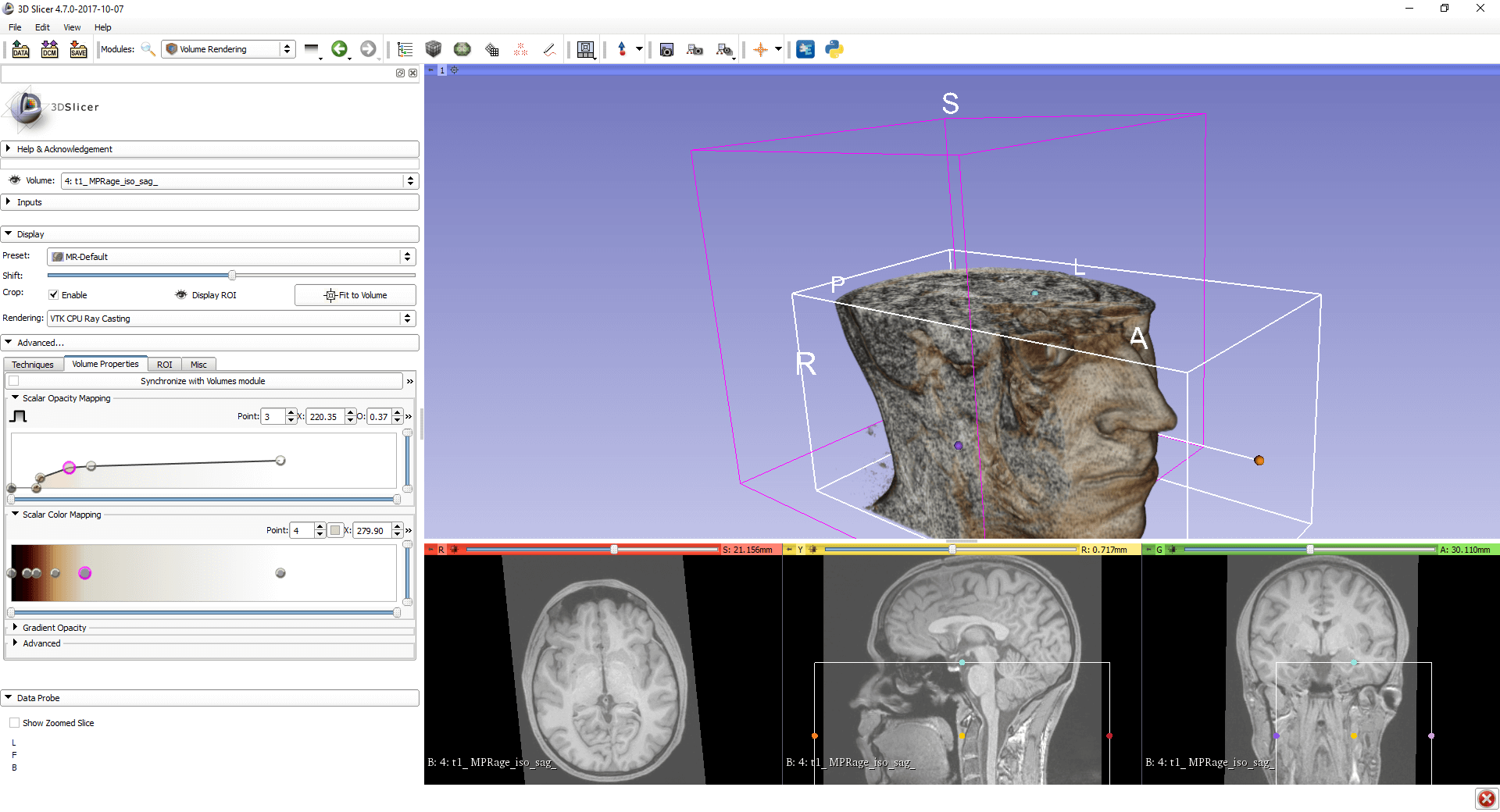 Region of Interest in a 3D Volume Rendering of an MRI in 3D Slicer