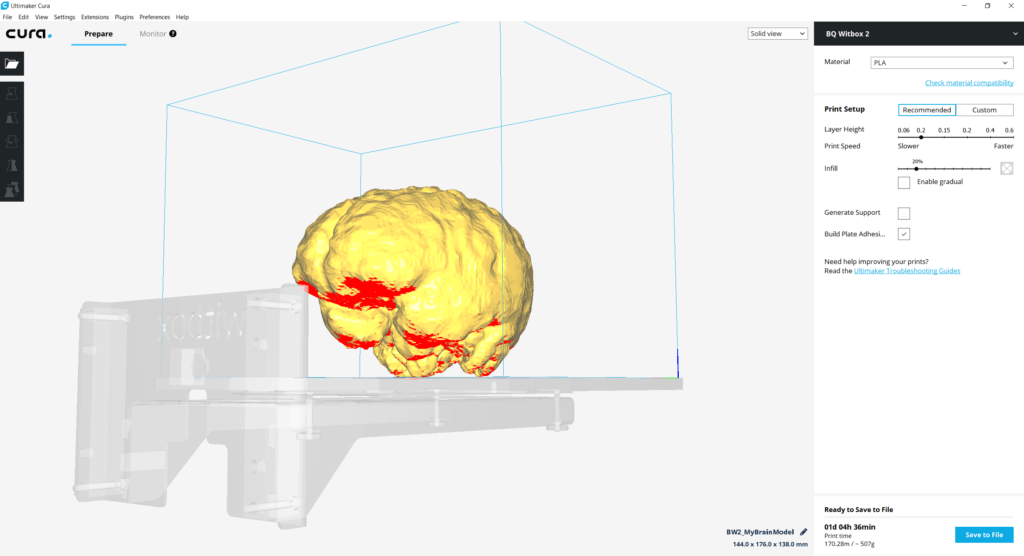 Overhang of the segmented 3D brain is shown in red by Cura