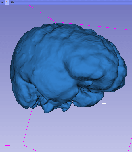 Slicer: generated 3D model of the brain, based on an MRI scan