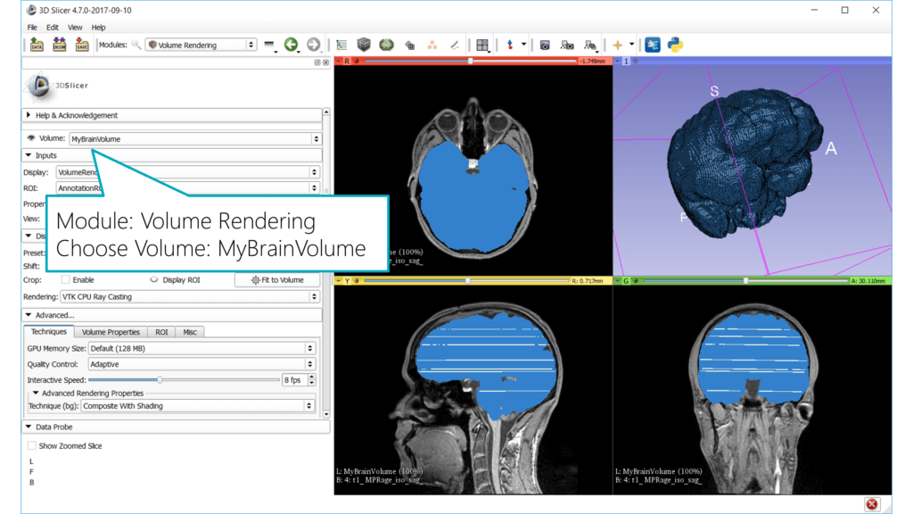 Slicer: 3D Volume of segmented brain from MRI data
