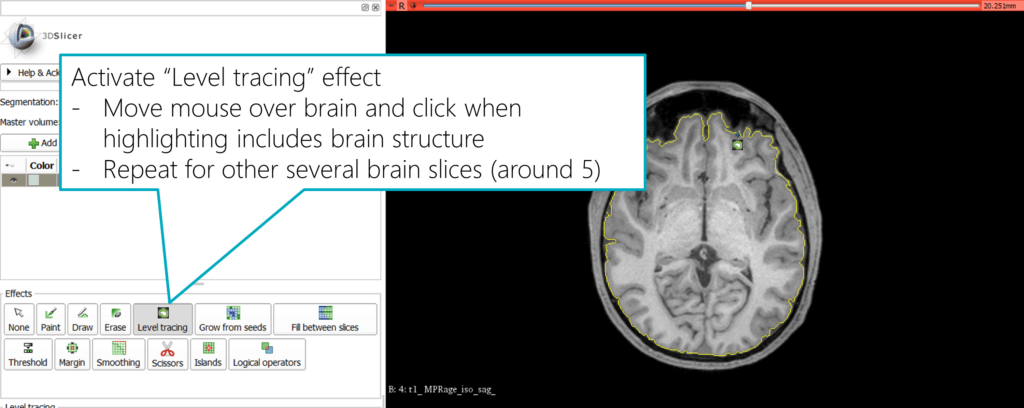 Level tracing effect in Slicer to segment the brain volume