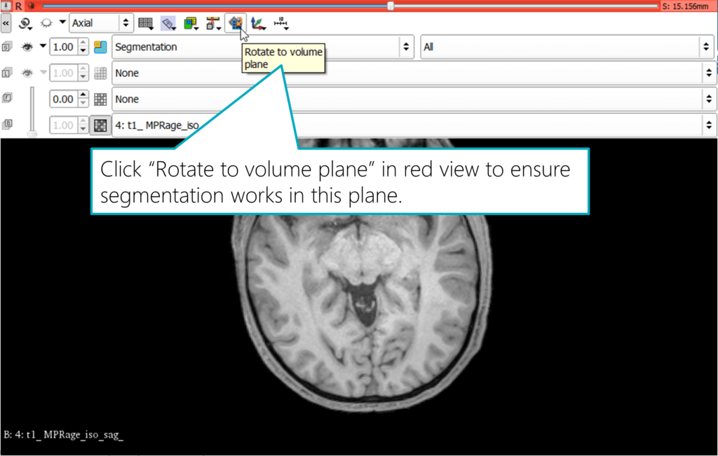 Rotate a view to the Volume Plane in Slicer
