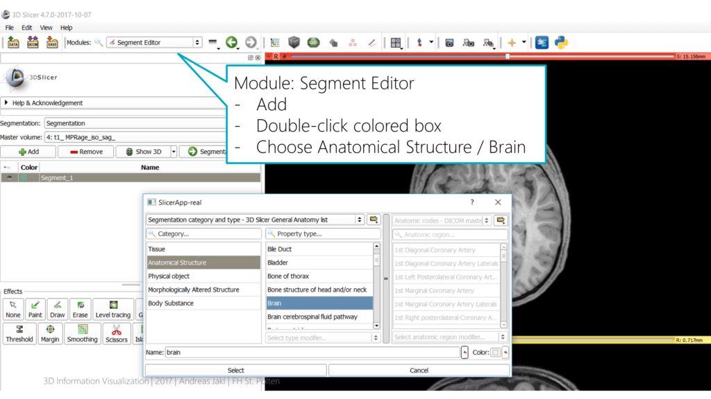 Select Brain segment category in 3D Slicer
