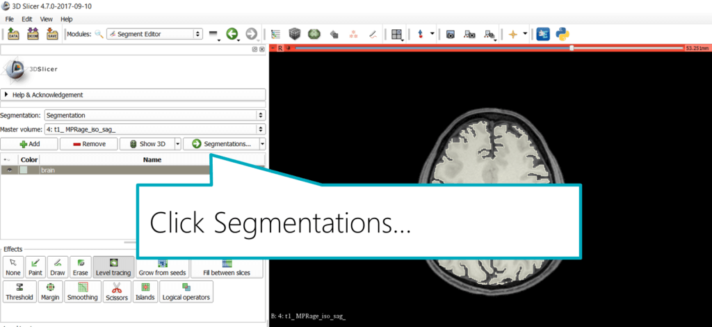Slicer: Export the Segmentation, step 1
