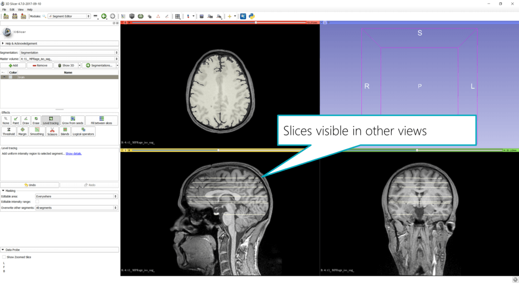 Slicer: segmentations are also visible in other views
