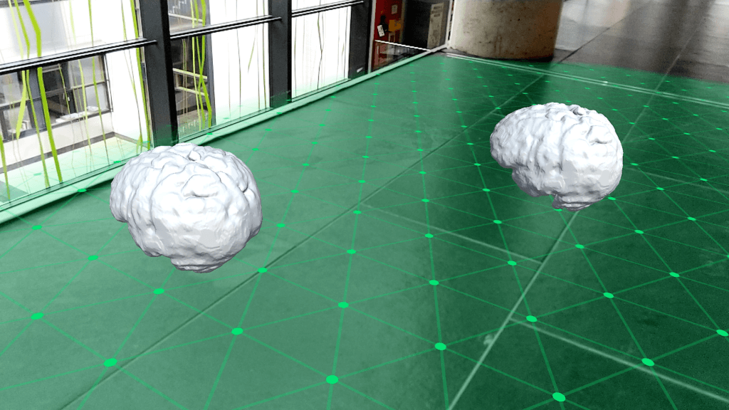 Placing 3D models of brains on planes detected by Google ARCore - Screenshot running on the Google Pixel 2